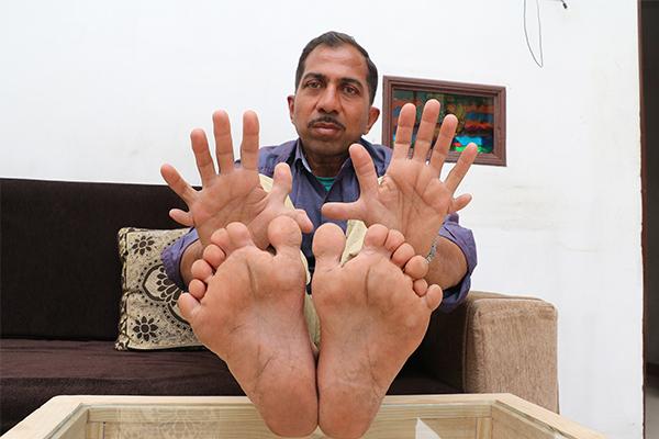 木匠有28个手指脚趾