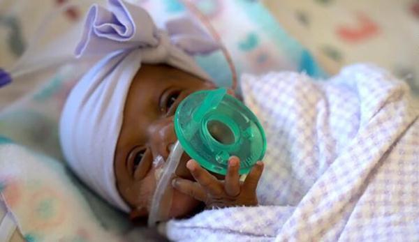 世界最小存活嬰兒出院 出生時約一個蘋果重