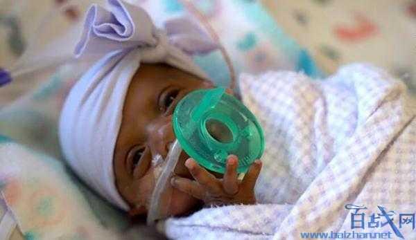 最小存活嬰兒出院,世界最小嬰兒,世界上存活最小的嬰兒