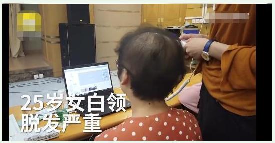 25岁女白领发量剩3成 工作压力和生活不规律正在拉扯你的头发