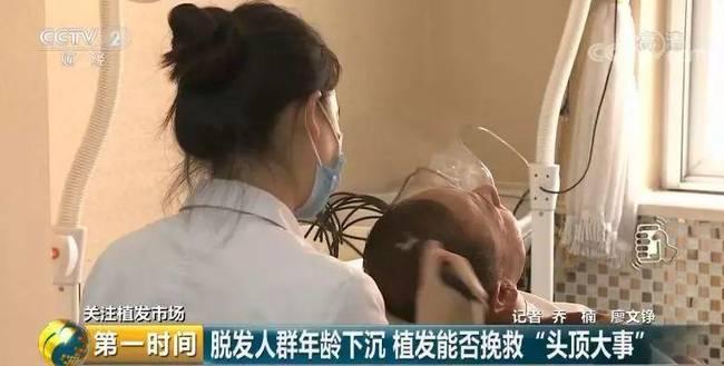 惊呆!全国脱发人群超2.5亿 平均6个人就有一人脱发