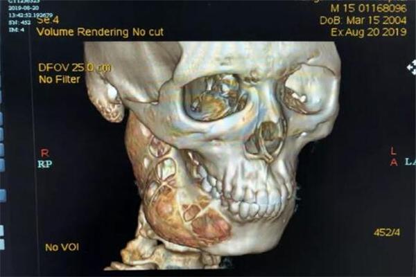 成釉细胞瘤,侵蚀,15岁男孩患成釉细胞瘤,男孩患成釉细胞瘤,男孩下颚被侵蚀一半