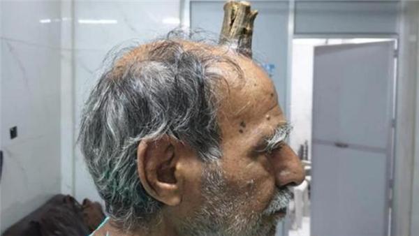 头部受伤后长出牛角,头部长出牛角,印度男子长出牛角