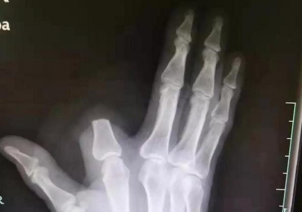 男子被蛇咬傷后自斷手指,醫生卻對他的做法連連搖頭