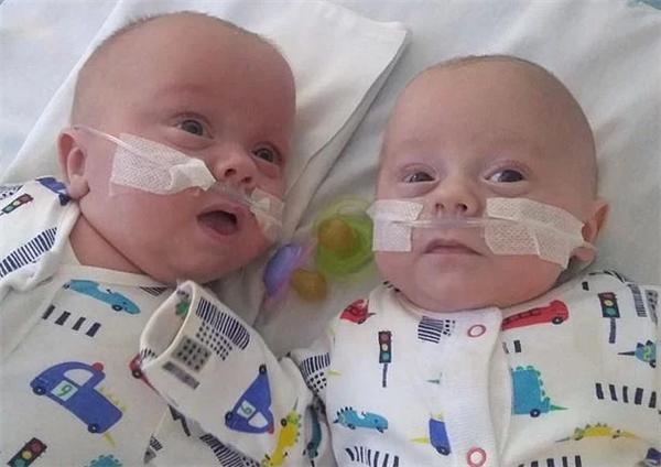 英国最小双胞胎奇迹生还,出生时体重比一罐汽水还要轻