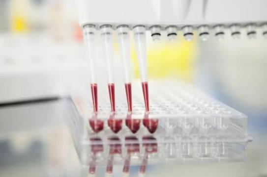 有抗体能抵抗病毒吗?抗体的工作原理科普