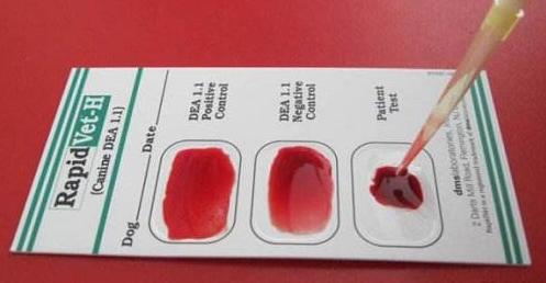 新冠感染或与血型有关,A型血被感染的风险最高