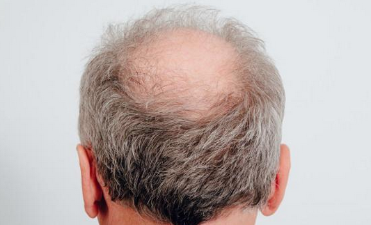 秃顶男性更易染新冠是什么情况?雄性激素居然成为病毒帮凶
