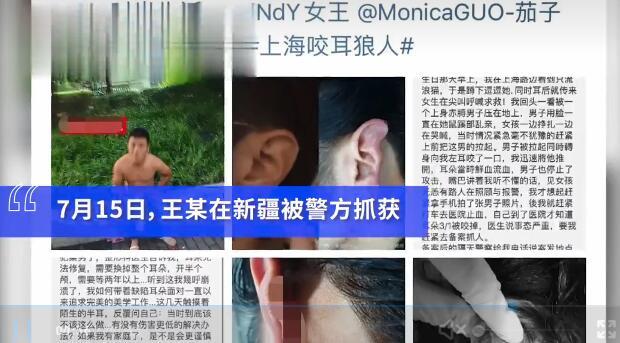 上海咬耳案嫌疑人落网 见义勇为反被咬掉耳朵
