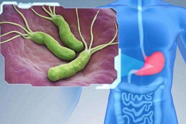 我国超一半人感染幽门螺杆菌 日常生活中如何防范幽门螺杆菌?