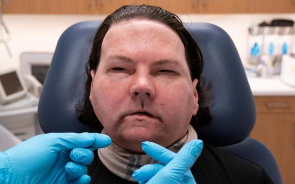 全球首例换脸手术成功,超过14名专业人士参与耗时23小时