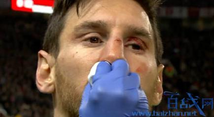 梅西眼眶受伤,梅西飞来横祸,