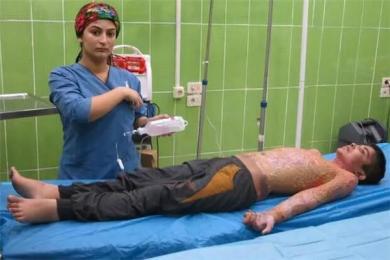 土耳其使用违禁武器 一名男孩全身70%烧伤