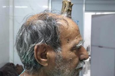 头部受伤后竟长出牛角,连医生也不明白原因